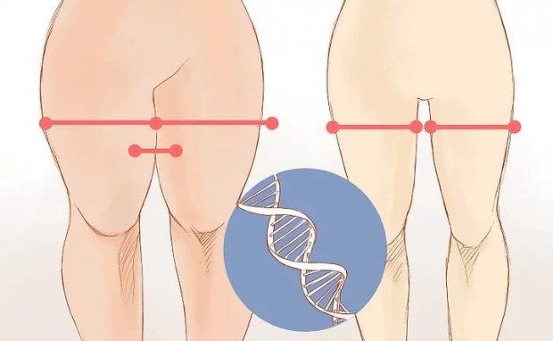 Причина появления толстых ног или полных бёдер