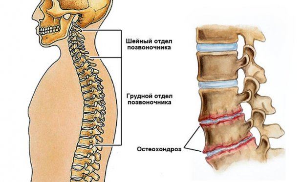 Комплексы упражнений гимнастики и ЛФК для лечения шейно-грудного остеохондроза
