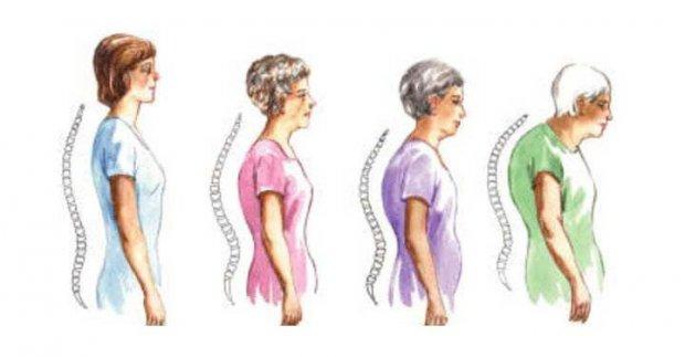 Кифоз при остеопорозе