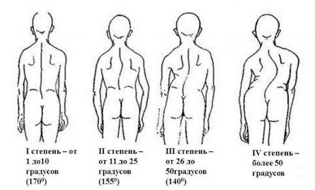 Разновидности ксолиоза