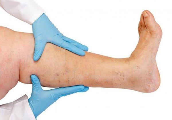 Упражнения при варикозном расширении вен ног