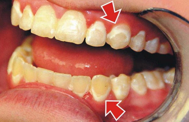 Как избавиться от черного налёта на зубах в домашних условиях