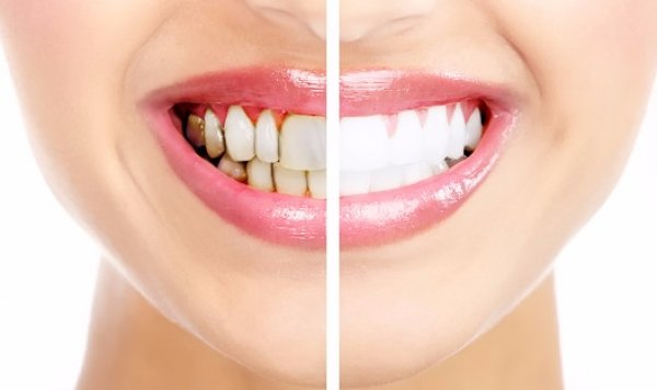 Белый налет на зубах: причины и как убрать