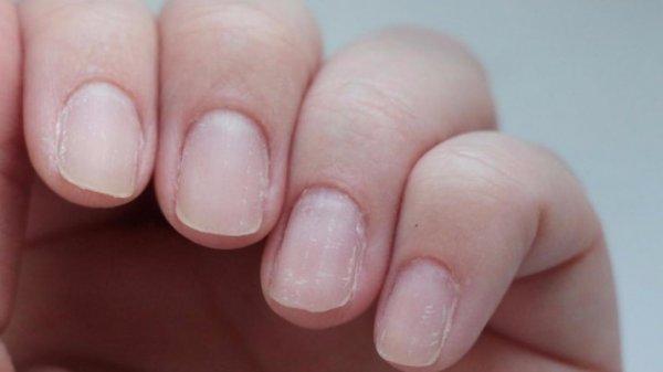 По какой причине слоятся ногти